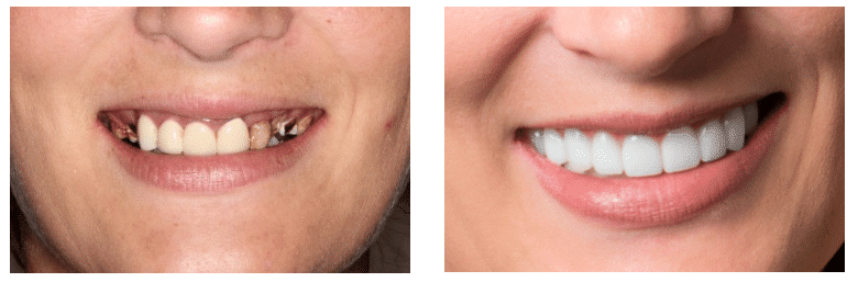 4 Leading Trends in Cosmetic Dentistry