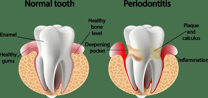 Gum Disease, the Silent Killer