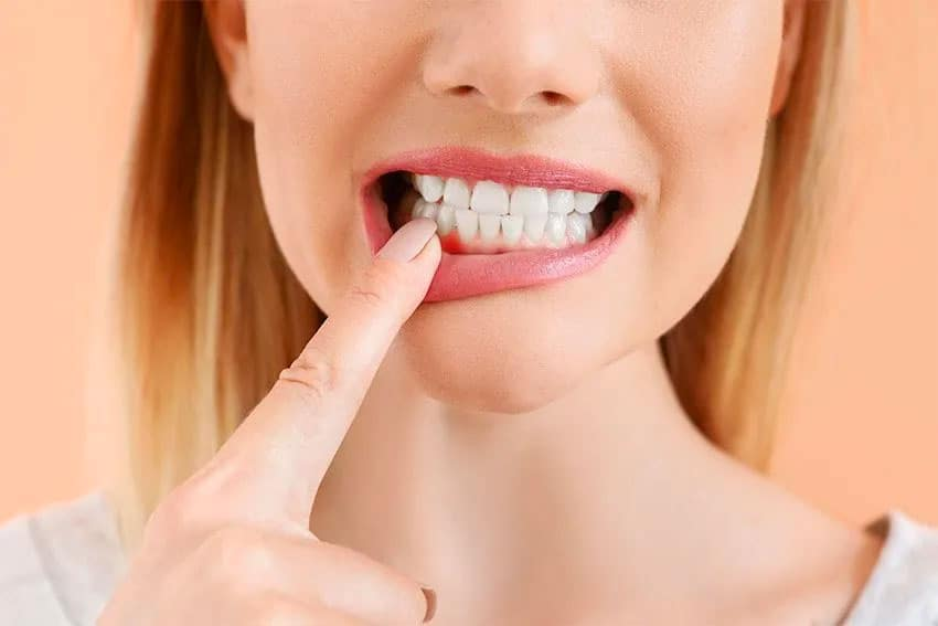 woman pointing to her red, swollen gums